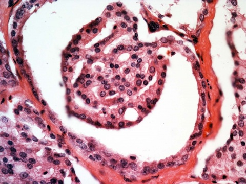 The photomicrograph shows a case of prostate cancer with proliferation of cancer cells forming a complex structure resembling a glomerulus. Prostate cancer with such a structure is considered to be moderate to high grade (Gleason pattern 4). Courtesy of Jiaoti Huang.